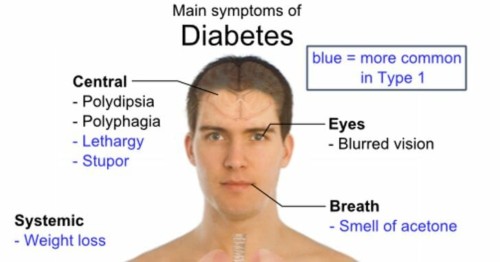 The Relationship Between Diabetes and Eye Problems - Beaumont Vision ...